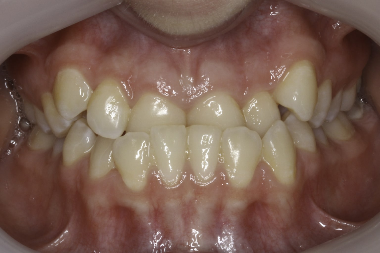 crooked teeth before smile