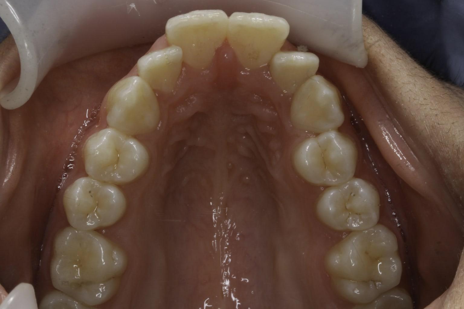 imbalance teeth 4 before