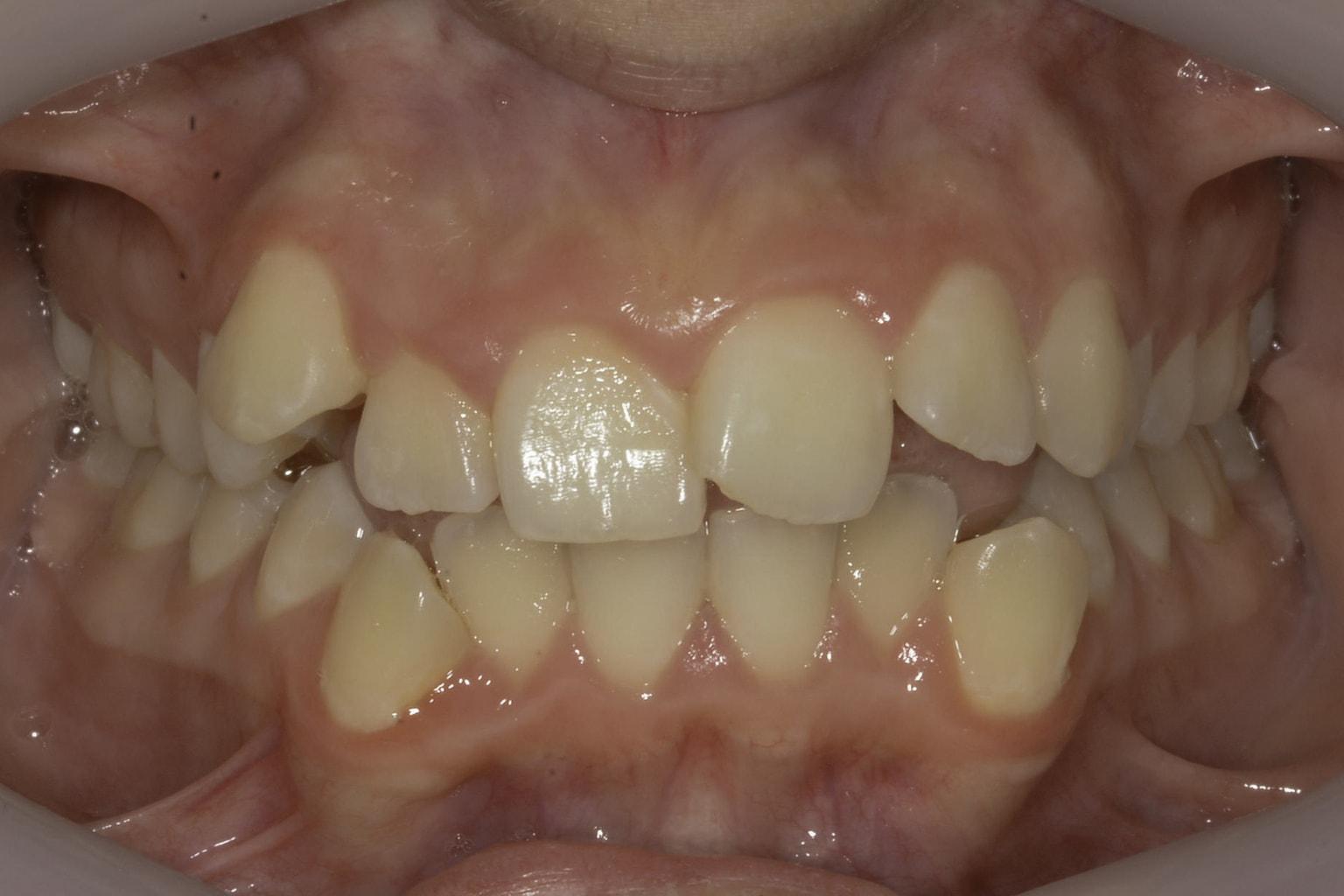 crooked teeth smile 5 before