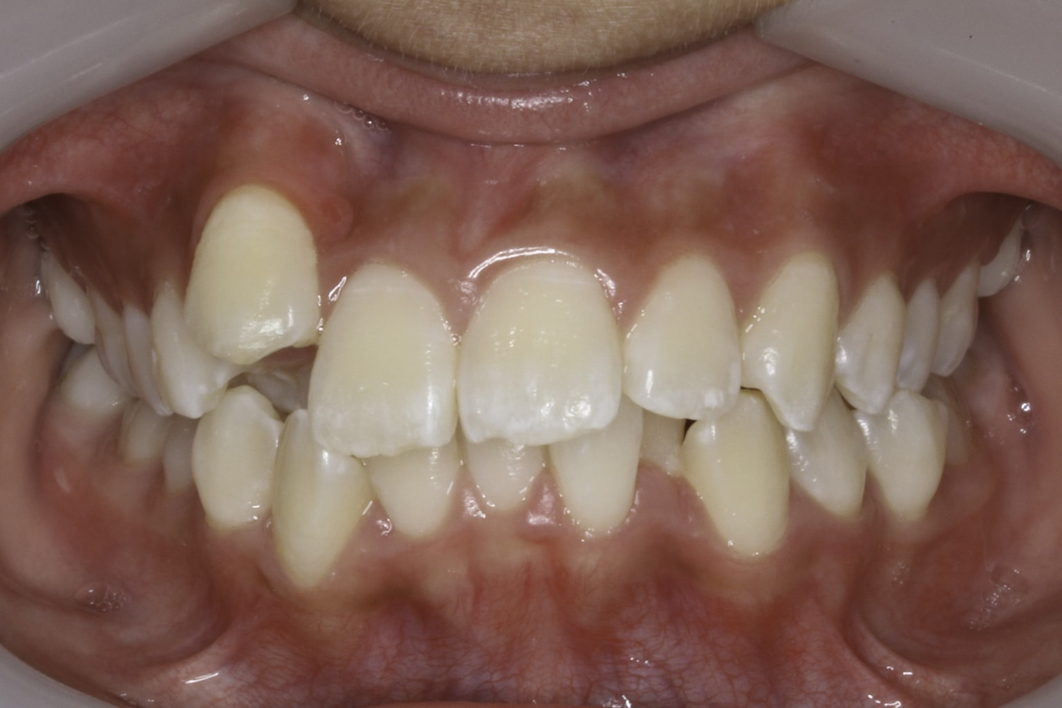 crooked teeth smile 7 before