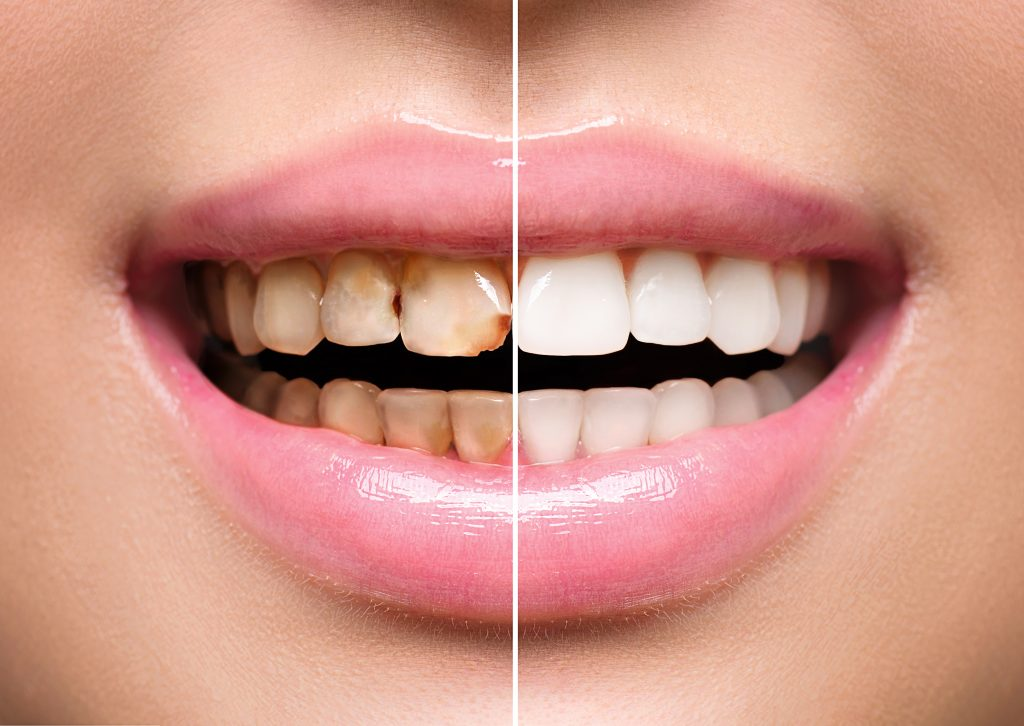 Discolouration on patient teeth